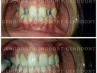Prótesis dentales-572249