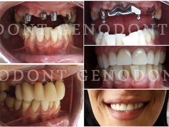 Prótesis dentales-572250