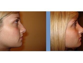 Cirugía estética-345207