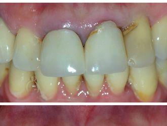 Prótesis dentales-537187