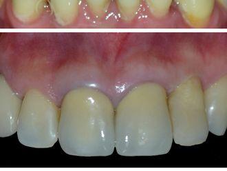 Prótesis dentales-537188