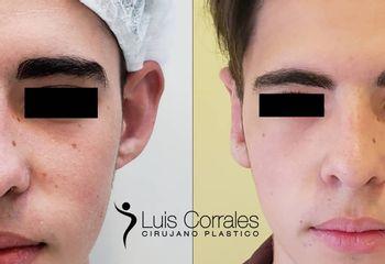 Otoplastia - Dr Luis Corrales