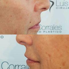 Relleno de labios - Dr Luis Corrales