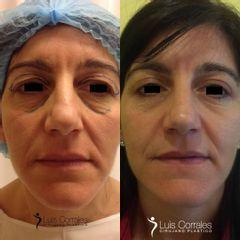 Blefaroplastia - Dr Luis Corrales