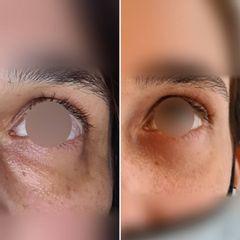 Eliminación de ojeras - Dr Luis Corrales