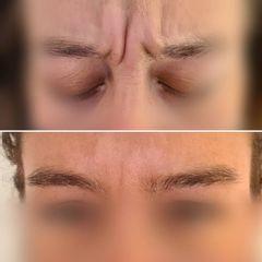 Botox - Dr Luis Corrales