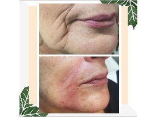 Rellenos faciales - LASERMEDICALCORP