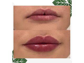 Relleno de labios - LASERMEDICALCORP