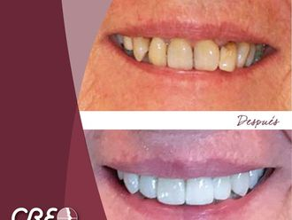 Blanqueamiento dental-775725