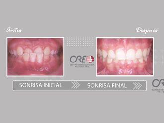 Ortodoncia-775726
