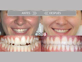 Ortodoncia-775729
