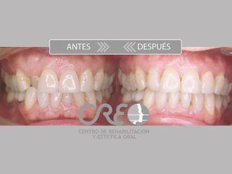 Ortodoncia-775731