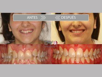 Ortodoncia-775732
