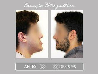 Cirugía maxilofacial-775780