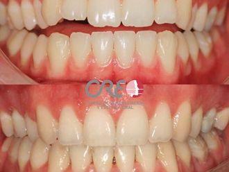 Ortodoncia-776394