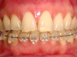 Ortodoncia lingual superior