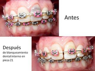 Blanqueamiento dental-548546