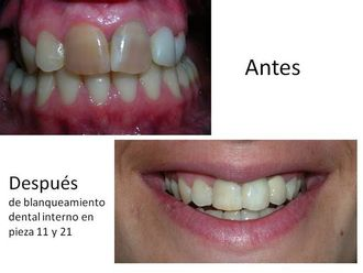 Blanqueamiento dental-548547