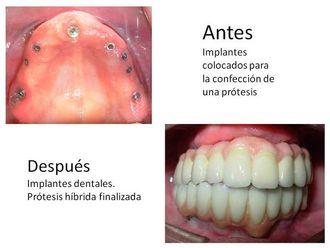 Implantes dentales - 548548