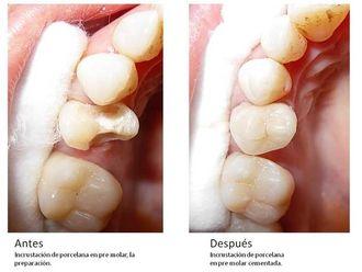 Prótesis dentales-548550