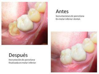 incustaciones dentales