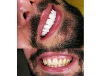 Blanqueamiento dental-642591