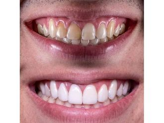 Blanqueamiento dental-642593