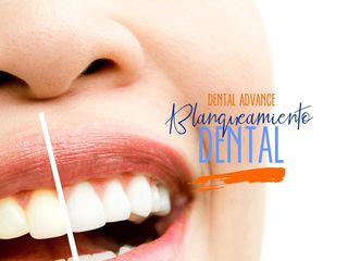 blanqueamiento Dental Advance