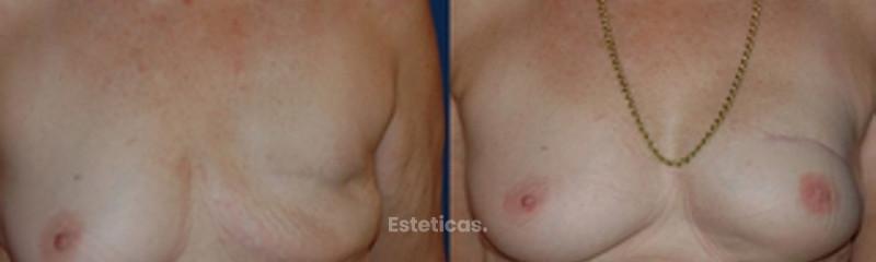 Reconstrucción mamaria post cancer