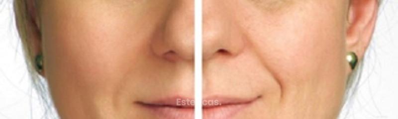 Antes y despues de lifting endoscopico frontal