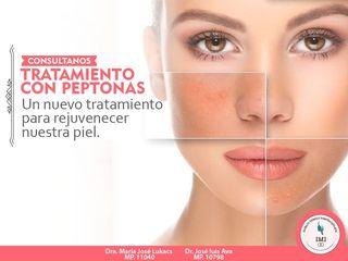 Tratamientos con Peptonas... Aminoacidos de origen biológico.