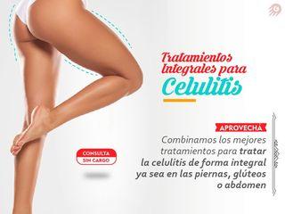Tratamientos Integrales Personalizados para celulitis!!