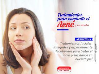 Tratamientos Integrales Personalizados para Acné!!