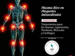 COMBATÍ LA ARTROSIS O LESIONES TRAUMATOLOGICAS PLASMA RICO EN PLAQUETAS INTRAARTICULAR