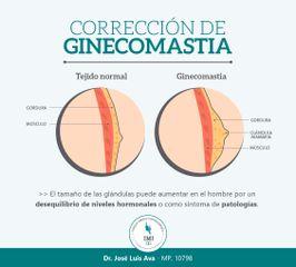 La ginecomastia es el agrandamiento del tejido graso y/glandular de los pectorales en hombres.