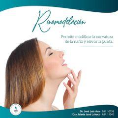 Rinomodelación: Obtené La nariz que siempre soñaste de forma rápida y sin postoperatorios.