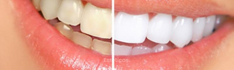 Blanqueamiento Dental en La plata