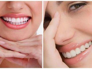 Dr. Sergio Michelis  - La plata - Implantes Dentales