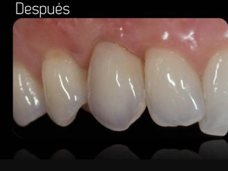 Implantes dentales-602350