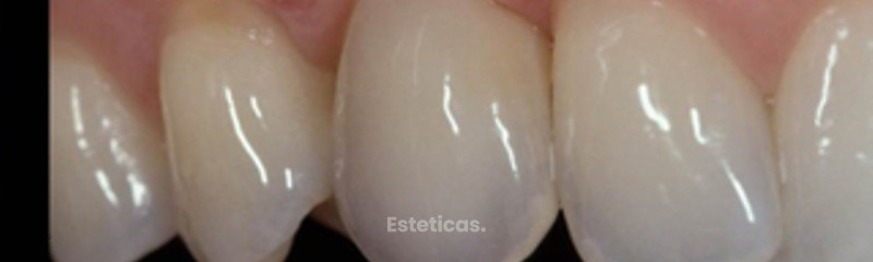 Implante dental - Dr. Sergio Michelis  - La Plata