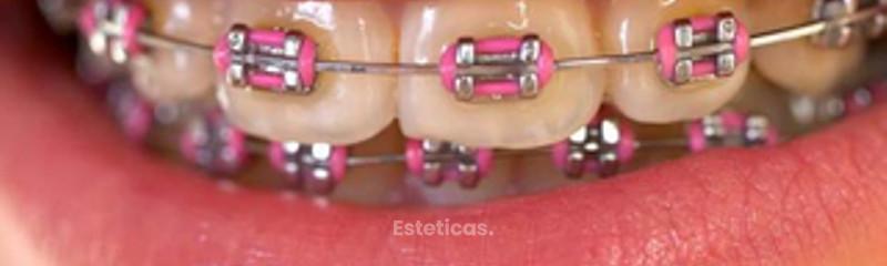 Ortodoncia Dr. Sergio Michelis - La Plata