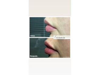 Ácido hialurónico - 637682