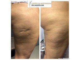 Tratamientos celulitis-637684