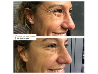Botox-637688