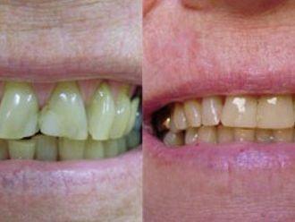 Prótesis dentales-276187