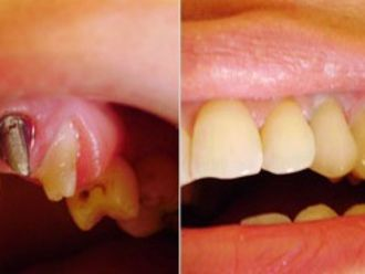 Prótesis dentales-276188