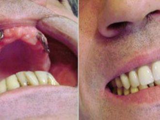 Implantes dentales - 276189