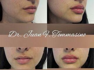 Perfilado de labios con Acido Hialurónico