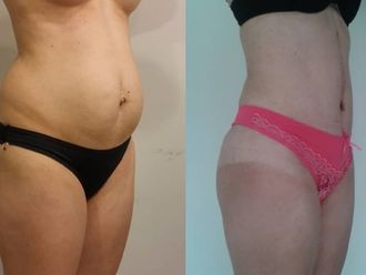 Abdominoplastía - 630582