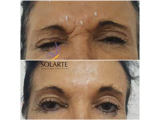 Botox - 628311